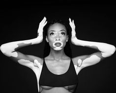 Winnie Harlow, a woman changing beauty norms. #photography #model