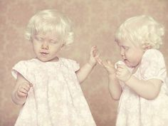 Albino twins. I would imagine fairly rare, but they don't care so why should you? Actually, you should be telling them how COOL THEY ARE !!!