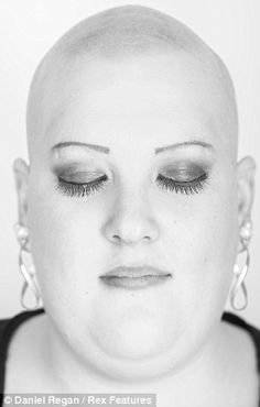 Awareness: It is not necessarily a permanent condition. Just as the onset of alopecia and its resultant hair loss can be sudden, so, too, can regrowth