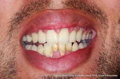 Upper and lower crowding to straight white teeth in 6 months with clear fixed braces by RikTrivedi at Parrock Street dental www.parrockstreetdental.co.uk