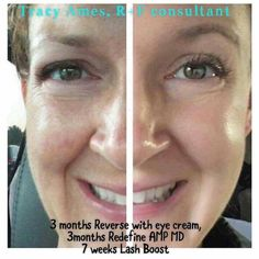 Tracy Ames' side-by-side shows a noticeable difference in her skin. Reverse for three months and then Redefine for three months, along with the AMP MD Roller. And check out those lashes after 7 weeks on Lash Boost!
