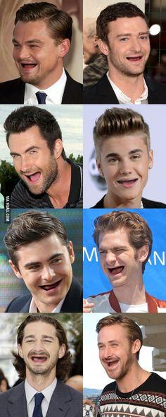 Imagina se os famos de Hollywood não tivessem dentes?