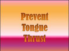 Tongue Thrust Part 2: Prevention