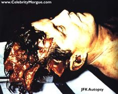 The Darkness within my Lights: John F. Kennedy Autopsy pics