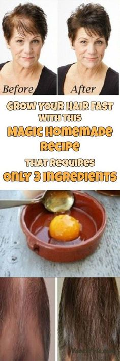 Grow Your Hair Fast With This Magic Homemade Recipe That Requires Only 3 Ingredients