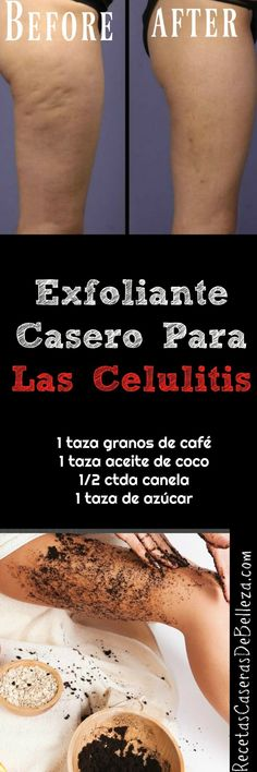 Exfoliante Casero para las Celulitis Beauty Care, Diy Beauty, Beauty Skin, Health And Beauty, Beauty Hacks, Beauty Makeup, Health Tips, Face Care, Body Care