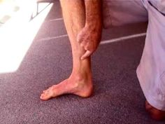 How to strengthen Tibialis Posterior to cure Shin Splints