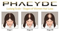 hair-transplant-for-woman