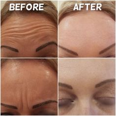 The After photos are taken 2 weeks after 2 areas of #botox
