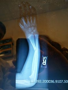 Broken arm?!? I have an oil.... and a doctor.... and a cast for that....