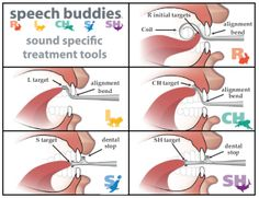 These help children learn correct tongue positioning for five of the most difficult-to-learn sounds.