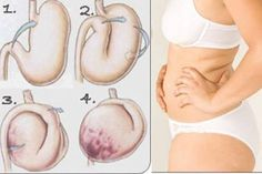 Severe Bloating And Constipation Are A Result Of These 3 Unhealthy Habits! Severe Bloating, Bloating And Constipation, Constipation Problem, Abdominal Bloating, Anti Bloating, Ibs, Health Articles, Health Tips