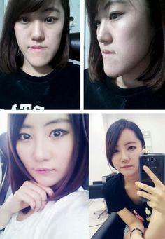 korean plastic surgery before after 1115 28 asiantown.net