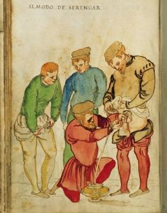 Short-robed Surgeon Catheterizes a Patient (ca. 1510) by Heinrich Kullmaurer and Albrecht Meher.