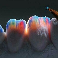 That beautiful gumline made my heart skip a beat Dental Hygiene School, Dental Life, Dental Assistant, Dental Hygienist, Dentist Art, Dentist Clinic, Dental Wallpaper, Dental Photos, Dental Photography