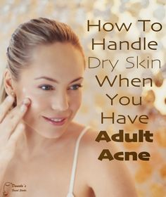 """""""Surviving Winter With Adult Acne"""" from The Acne Whisperer blog. How can you take care of your acne-prone or oily skin in the winter? Find out at the link! http://acnewhisperer.blogspot.com/2014/01/surviving-winter-with-adult-acne.html #Skincare #AdultAcne #DrySkin #Winter"""