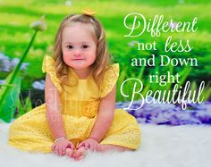 Different not less, and down right beautiful #downsyndrome #awareness
