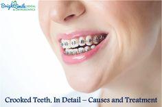 Crooked Teeth, In Detail – Causes and Treatment   #BestDentalClinicinSanAntonio, #dentalimplants, #brightsmile, #dentalClinic, #CosmeticDentalCare, #Gumdiseasecare, #Gumdisease