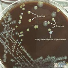 """Staphylococcus aureus vs coagulase negative Staphylococci"" S.aureus: golden-yellow colonies and coagulase negative Staphylococci: white colonies #laboratory #microbiology #staphylococci #bacteria by microbiolab"
