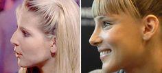 Cirugías de Nariz de las Celebrities Españolas  #belleza