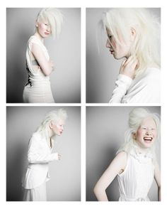 Connie Chiu, Connie is an albino Asian model who left Hong Kong for Sweden to market her naturally white hair and pale skin to the European fashion world, stirring up more superficial racial debates than Michael Jackson's scrotum.