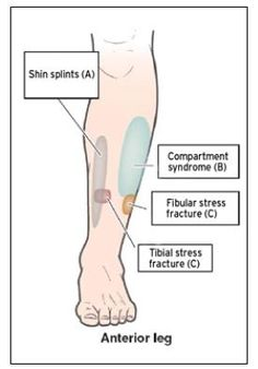 Pain in Shins