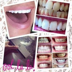 Fab news... I'm now in a position to sell this amazing new toothpaste!! peroxide free non abrasive safe for pregnant ladies fine for children over 6 dentist approved affordable These are real results!!! message me to order x #nuskin #whitening #toothpaste #sale #pearlywhites #teethwhitening by kittysixx92 Our Teeth Whitening Page: http://www.myimagedental.com/services/cosmetic-dentistry/teeth-whitening/ Other Cosmetic Dentistry services we offer: http://www.myimagedental.com/services/...