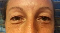Nu Skin Tru Face Ideal Eyes used on 1 eye only for 2 - 3 weeks. Spot the difference.