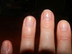 Nail repair after acrylics.