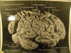Published photographs of Albert Einstein's brain reveal that the brilliant physicist had extra folding in his brain's gray matter, the site of conscious thinking.