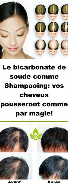 Le bicarbonate de soude comme Shampooing: vos cheveux pousseront comme par magie… Baking soda as Shampoo: your hair will grow like magic! Baking Soda Shampoo, Regrow Hair, Extreme Hair, Stop Hair Loss, Beauty Regimen, Anti Aging Treatments, Hand Care, Hair Serum, Control