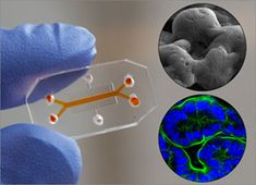 World Congress on Advanced Biomaterials and Tissue Engineering: Organ-on-Chip:Before any medicine can be brought t...