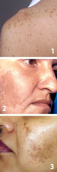 Naturally Eliminate Brown Spots on the Face - # . Lump Behind Ear, Earache Remedies, Brown Spots On Skin, Anti Cellulite, Skin Food, Best Anti Aging, Pole Dancing, Poses, How To Get Rid