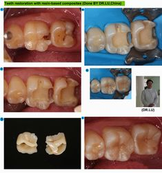 Teeth restoration with resin-based composites the full dental crown has always been recommended after the root canal treatment.But nowadays,the concept of minimally invasive is popular among patients and dentists.So resin-based composites used in the teeth restoration is a preferable choice for dentists.  By Dr.Lu