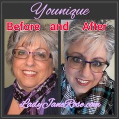 Before and AFTER YOUNIQUE!