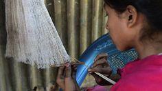 Identifican en Bangladesh un nuevo caso de una enfermedad de la piel que hace crecer grandes verrugas de aspecto vegetal. Se trata de una niña de 10 años.