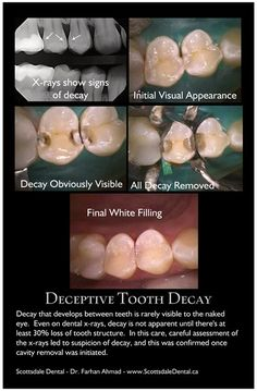Deceptive Tooth Decay. Decay that develops between teeth is rarely visible to the naked eye. Even on dental x-rays, decay is not apparent until there's at least 30% loss of tooth structure. In this case, careful assessment of the x-rays led to suspicion of decay, and this was confirmed once cavity removal was initiated.