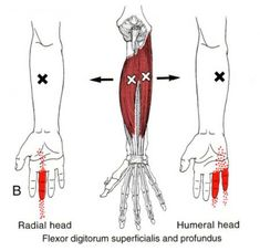 The Trigger Point & Referred Pain Guide Massage Tips, Massage Therapy, Medical Symptoms, Sante Bio, Dry Needling, Referred Pain, Trigger Finger, Sports Therapy, Trigger Point Therapy
