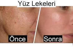 Apple cider vinegar mask that saves blemishes - care ideas - cider vinegar .- Apfelessig-Maske, die Hautunreinheiten erspart – Pflege Ideen – Apple cider vinegar mask that saves blemishes -… - Acne Treatment, Skin Treatments, Face Mapping, Beauty Tips For Face, Homemade Skin Care, Apple Cider Vinegar, Hair Loss, Beauty Care, Beauty Hacks