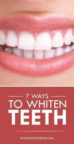 7 Simple Ways To Whiten Teeth