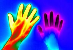 Raynaud's disease - from Matthew Clavey, Thermal Vision Research