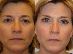 """""""Before and After"""" of Juvederm injected in the face to smooth out wrinkles and loose skin. #skinwin #keepingphillypretty #aboutfacephilly"""