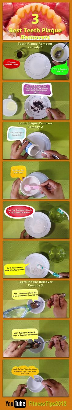 Remove Tartar Teeth Home Remedy. These simple 3 step formulas which includes baking soda, salt, powdered cloves and Rosemary essential oil is very effective in removing tartar from your teeth. Teeth Health, Healthy Teeth, Dental Health, Dental Care, Oral Health, Best Teeth Whitening Kit, Teeth Whitening Remedies, Natural Teeth Whitening, Teeth Care