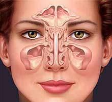 natural health remedies for sinusitis