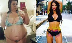 Woman shows off her 175lbs weight loss and stretch marks in photoshoot