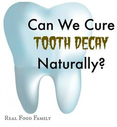 Can We Cure Our Kid's Tooth Decay NATURALLY?