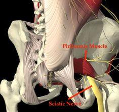 sacroiliac joint arthrititis -> piroformis muscle tension syndrome -> sciatic pain