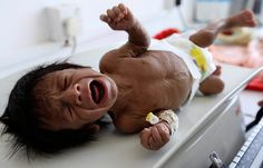 A malnourished child lies on a weighing scale at a therapeutic feeding centre at al-Sabyeen hospital in Sanaa. Aid agencies fear that if that without rapid intervention Yemen will face a hunger crisis of catastrophic proportions Photograph: Mohamed Al-sayaghi/Reuters