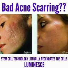 Luminesce will get rid of wrinkles, dark spots, acne scars and much more! www.THEwrinklewarrior.jeunesseglobal.com