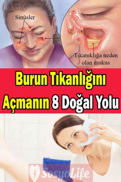 How to open the nasal congestion, what is good for nasal congestion – Health and Fitness Health And Wellness, Health Fitness, Nasal Congestion, Whats Good, Flu Season, Adolescence, Diet And Nutrition, Science And Nature, Health Remedies